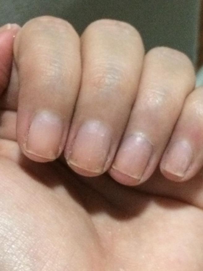 Unhas sem esmaltes antes e com pelinhas